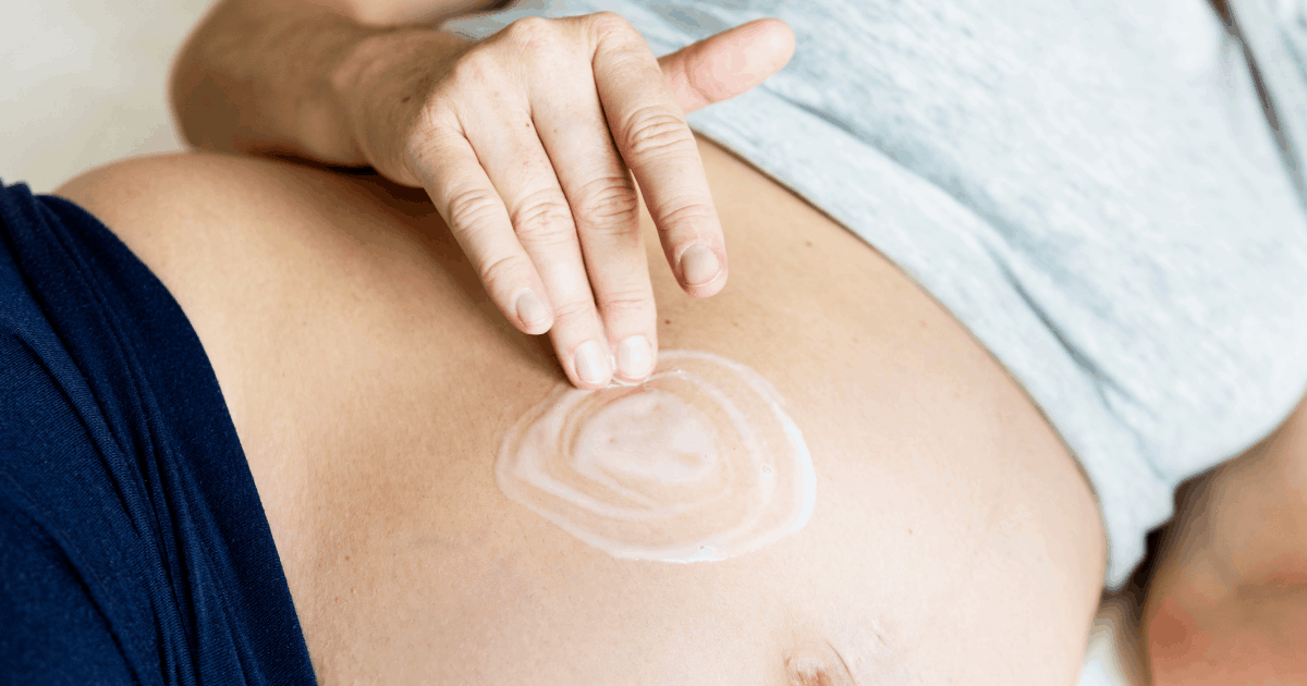 Can you prevent stretch marks